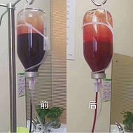 臭氧治疗仪,大自血臭氧治疗仪的必备臭氧耗材