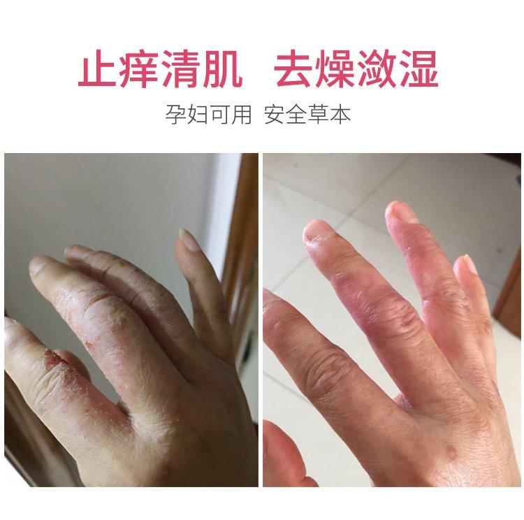 成人湿疹(症状版)180224_01