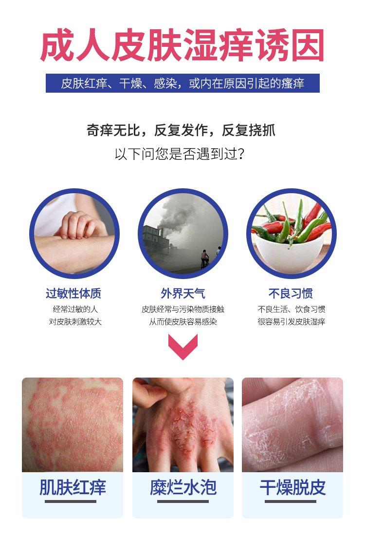成人湿疹(症状版)180224_02